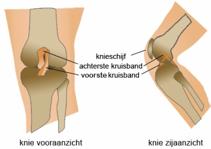 kniebrace voor gescheurde kruisband